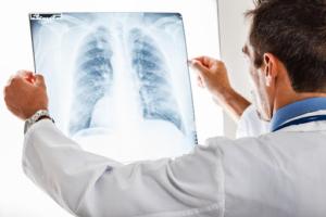 Chronic Alcoholism and Pneumonia
