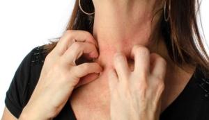 alcohol allergy symptoms